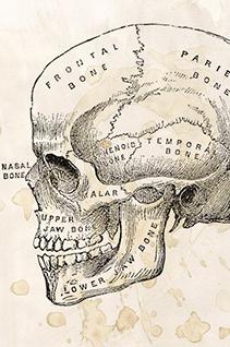 Uma amputação, um paciente e três mortos: conheça a sanguinolenta medicina do século XIX